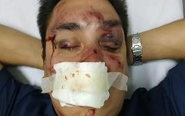 20/01/2020: Golpe a la barra de Racing: detuvieron a sus jefes por la paliza a un periodista