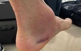 12/07/2021: Ángel Di María y la foto de su tobillo tras la final ganada
