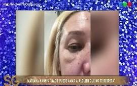 26/08/2019: Drogas y violencia: Mariana Nannis contó que perdió un embarazo después de que Caniggia la empujó contra un auto