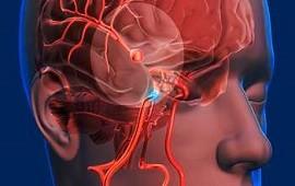 08/10/2021: Qué es un aneurisma cerebral como el que sufrió Fernán Mirás, qué lo provoca y cómo es el tratamiento